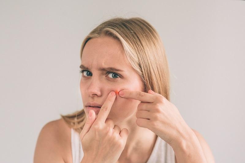 Pelle grassa e seborroica: 3 prodotti che non possono mancare nella tua beauty routine